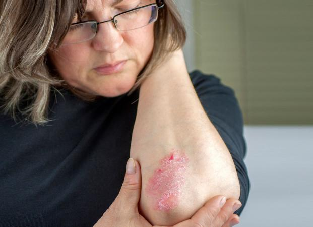 Psoriasis on Elbow
