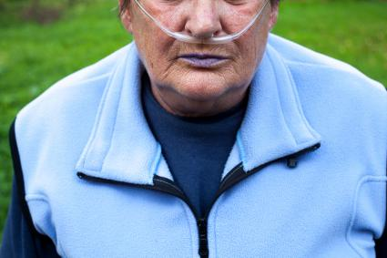 Man with blue lips due to COPD