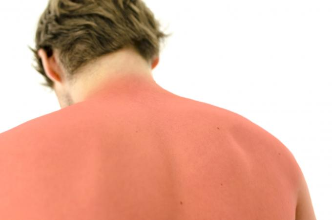 Severe sunburn