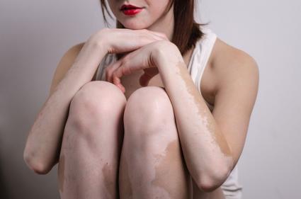 Vitiligo On The Penis
