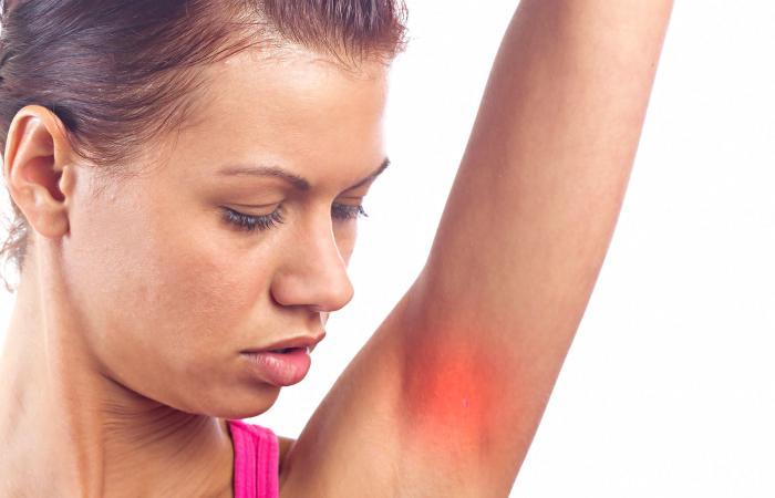 Underarm rash