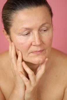 Aging skin with acne