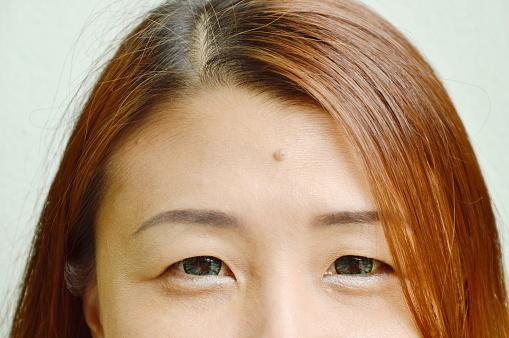 mole on womans forehead