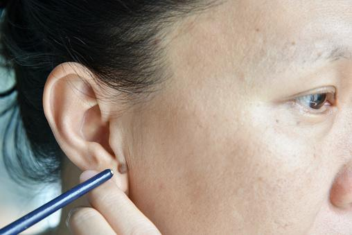 woman with mole on ear