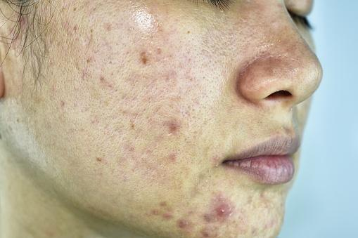 womans face with cystic acne