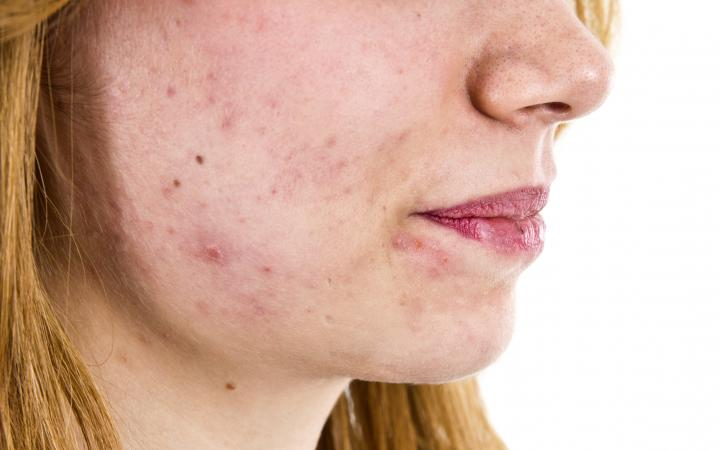 Teenager with acne problems