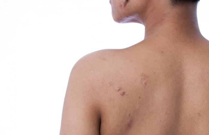 Back and shoulder with acne scars