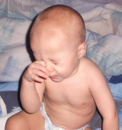 Baby suffering from Roseola