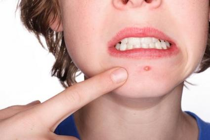 benzolyl peroxide fights acne