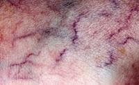 Varicose veins showing through the skin