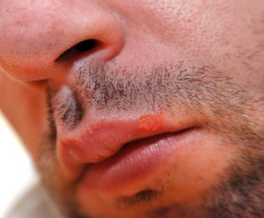 Fever blister on lip