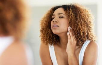 Recognizing Stress Acne and How to Beat It