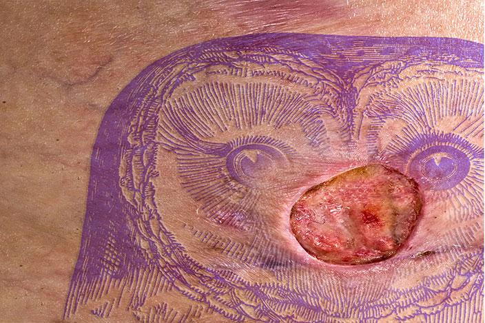 Pictures Of Grotesquely Infected Tattoos Lovetoknow Whether this is your first, or if you have if it is your first, it can be a little scary if it gets infected. grotesquely infected tattoos