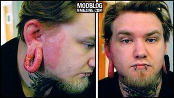 Images of stretched ear lobe infection