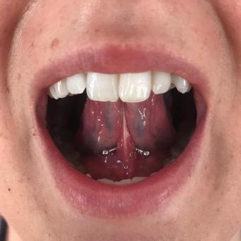 Frenulum piercing by Ashley McElvy