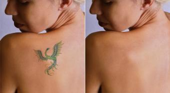 Laser Tattoo Removal Aftercare Instructions