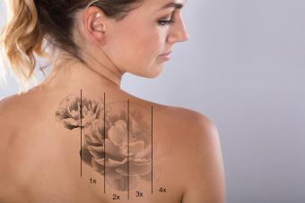 How to Lighten a Tattoo Naturally Without Pain