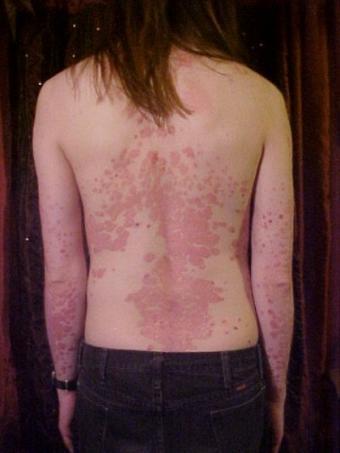 Tattoos and Psoriasis