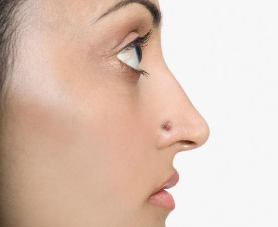 Nose Keloid As A Result Of Piercing Lovetoknow