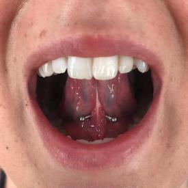 Frenulum piercing by Ashley McElvy