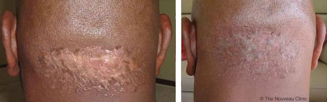 Before and after scar coverup by The Nouveau Clinic