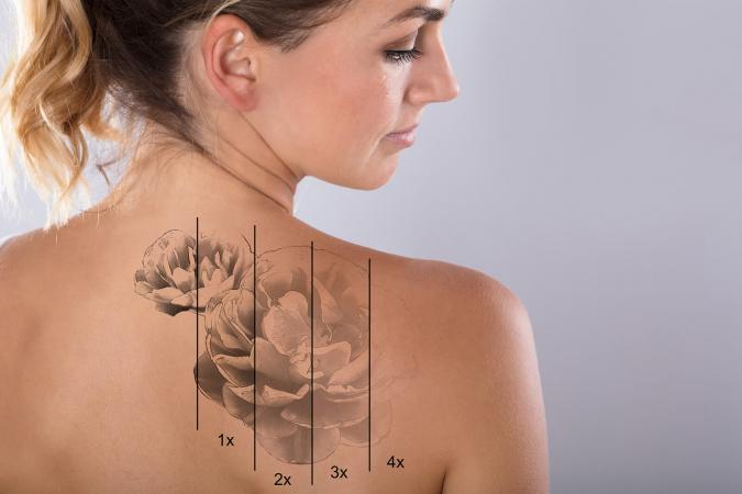 Lighten tattoo naturally