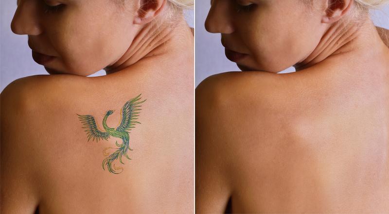Eliminación de tatuajes con láser antes y después