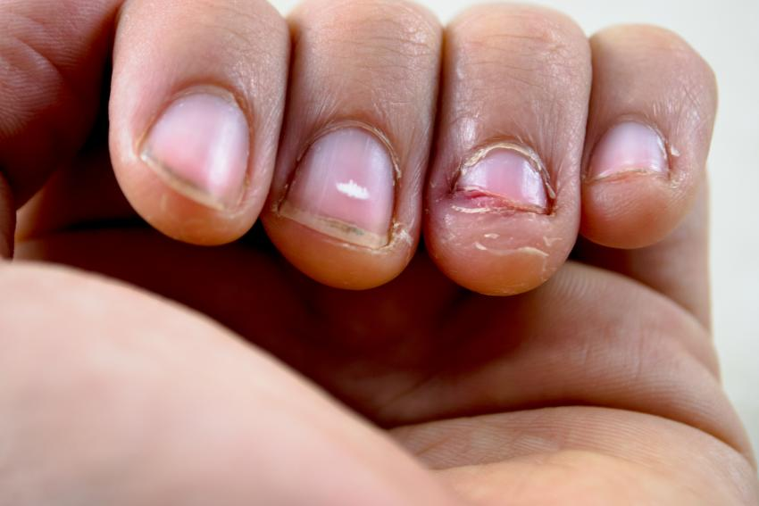 Fingernails Highlight Vitamin Deficiencies | LoveToKnow