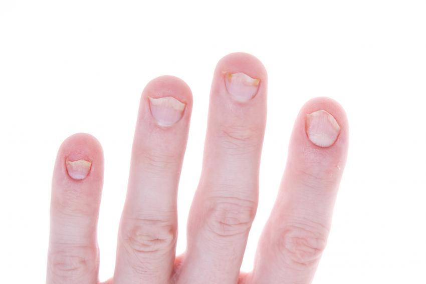 Fingernails Highlight Vitamin Deficiencies   LoveToKnow