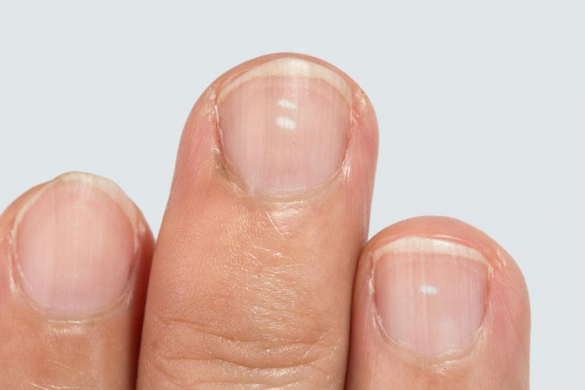 Fingernails Highlight Vitamin Deficiencies