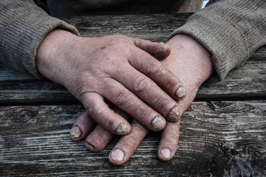 Fingernails Highlight Vitamin Deficiencies | LoveToKnow