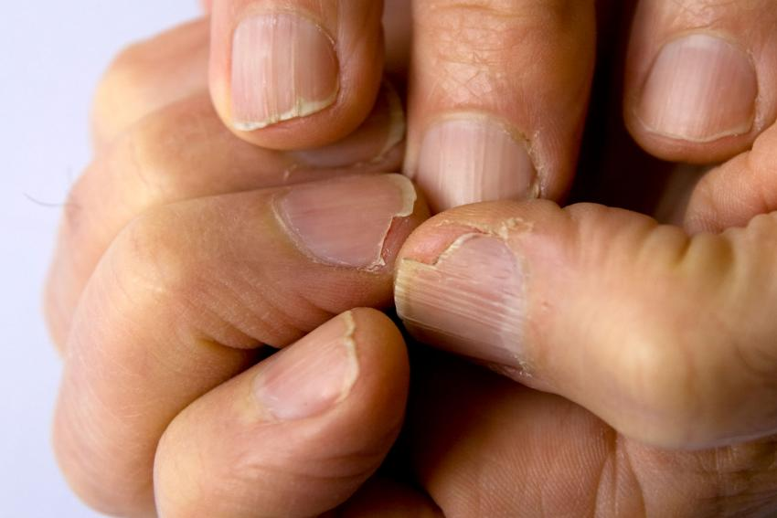 Nail Grooves