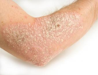 https://cf.ltkcdn.net/vitamins/images/slide/124265-791x607-psoriasis.jpg
