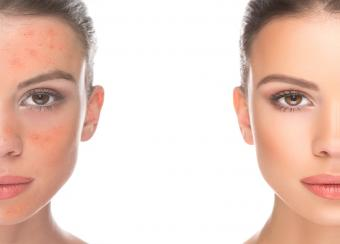 Can Vitamin D Cause or Treat Face Rashes?