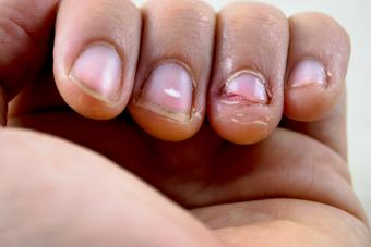 https://cf.ltkcdn.net/vitamins/images/slide/209180-850x567-Fingernails-Vitamin-Deficiency.jpg
