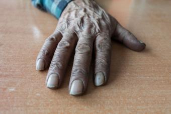 https://cf.ltkcdn.net/vitamins/images/slide/209181-850x567-Discolored-Nails.jpg