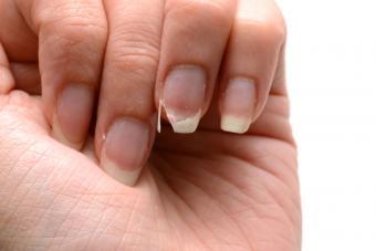 https://cf.ltkcdn.net/vitamins/images/slide/209187-850x567-Brittle-Splitting-Nails.jpg