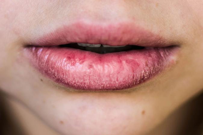 woman with dry, chapped lips
